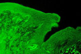 Section of a rat tongue stained for the Calcium-Sensing Receptor (CaSR)
